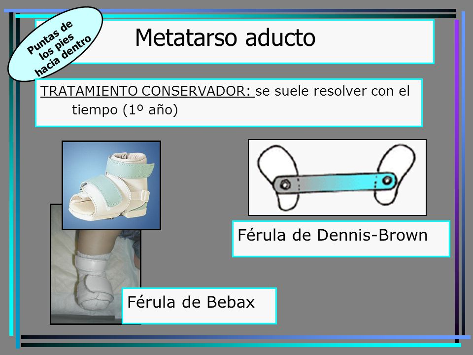 Metatarso aducto Férula de Dennis-Brown Férula de Bebax