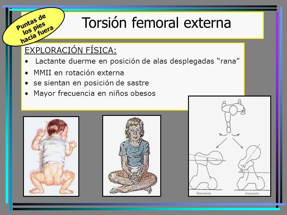 Torsión femoral externa