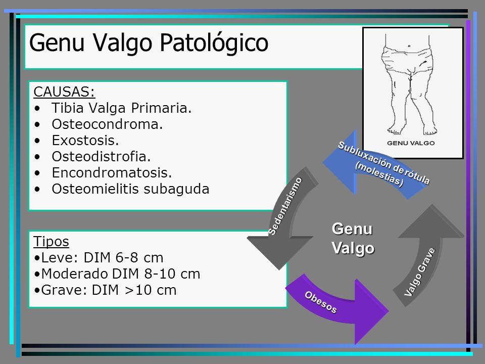 Genu Valgo Patológico Genu Valgo CAUSAS: Tibia Valga Primaria.