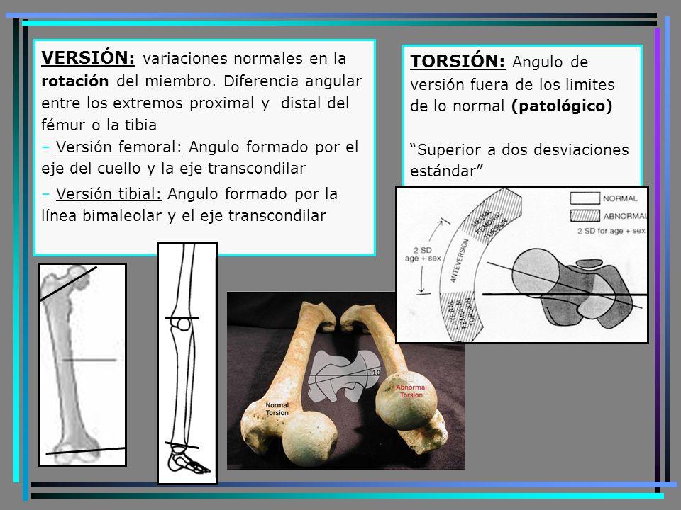 VERSIÓN: variaciones normales en la rotación del miembro