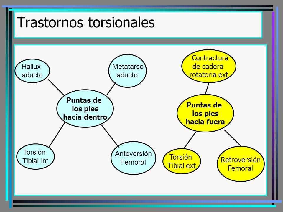 Trastornos torsionales