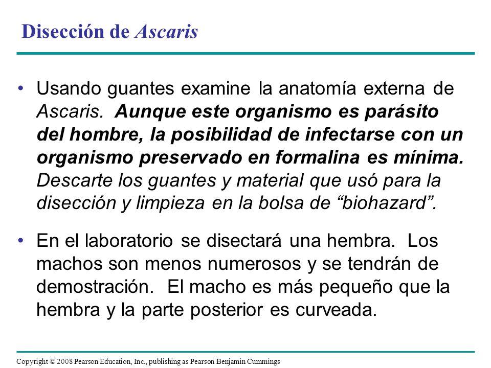 Disección de Ascaris
