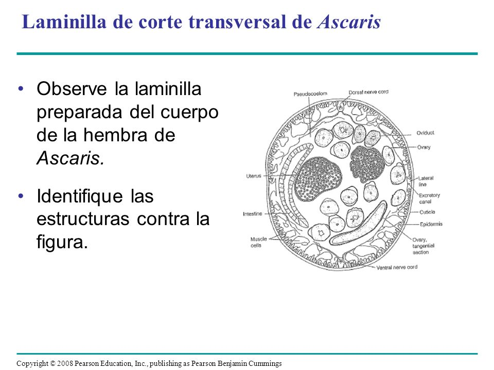 Laminilla de corte transversal de Ascaris