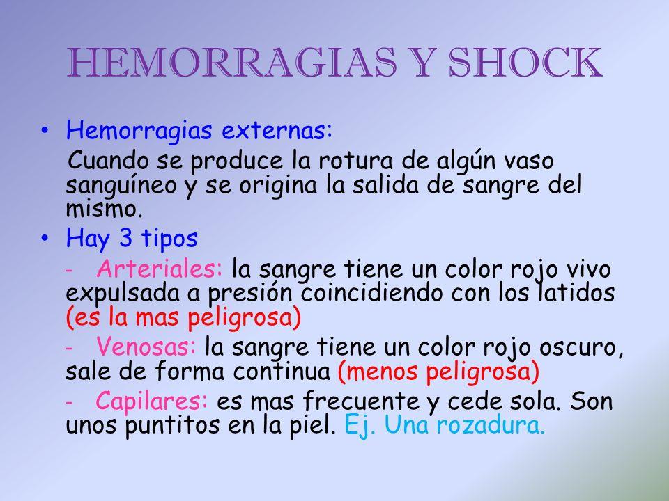 HEMORRAGIAS Y SHOCK Hemorragias externas: