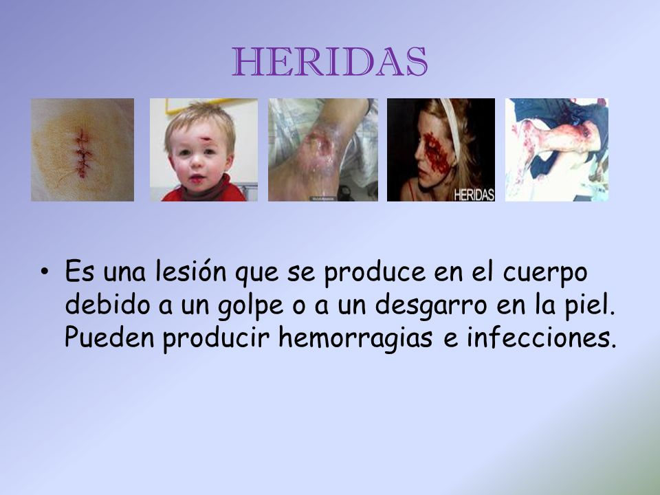 HERIDAS Es una lesión que se produce en el cuerpo debido a un golpe o a un desgarro en la piel.