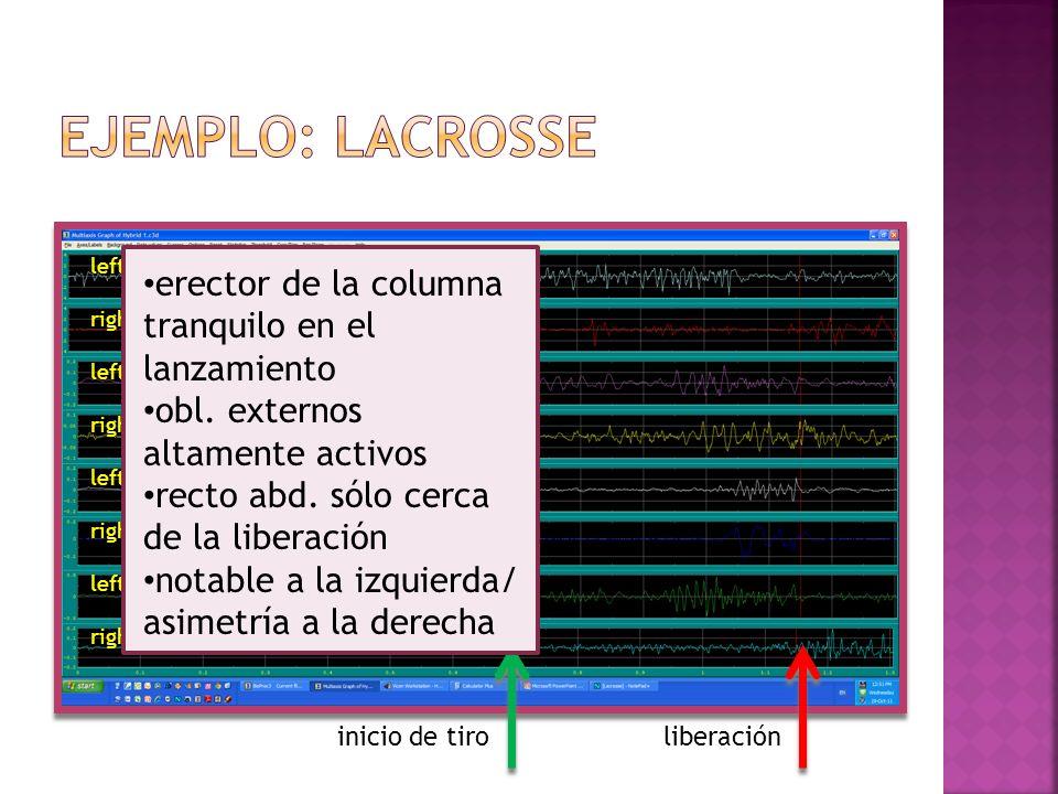 Ejemplo: lacrosse erector de la columna tranquilo en el lanzamiento