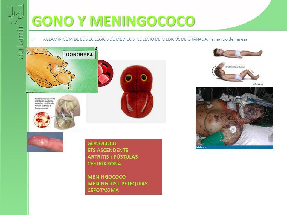 GONO Y MENINGOCOCO GONOCOCO ETS ASCENDENTE ARTRITIS + PÚSTULAS