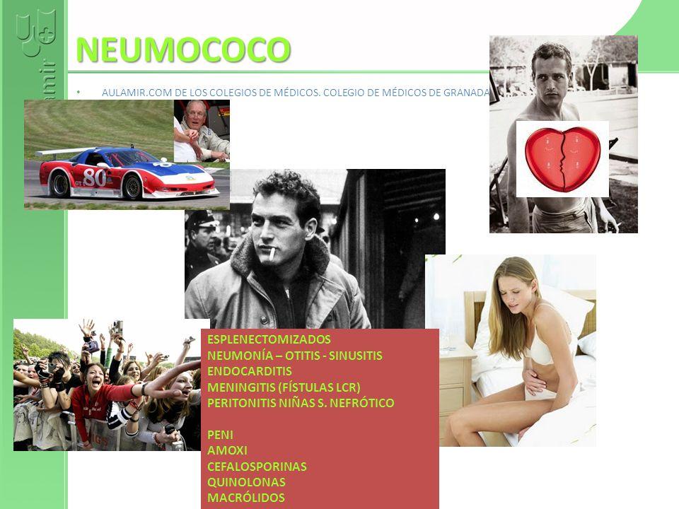 NEUMOCOCO ESPLENECTOMIZADOS NEUMONÍA – OTITIS - SINUSITIS ENDOCARDITIS