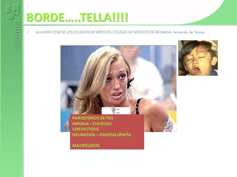 BORDE…..TELLA!!!! PAROXISMOS DE TOS HIPOXIA – CIANOSIS LINFOCITOSIS