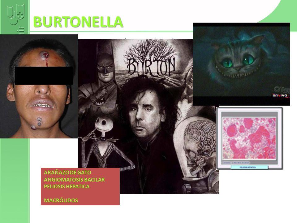 BURTONELLA ARAÑAZO DE GATO ANGIOMATOSIS BACILAR PELIOSIS HEPATICA