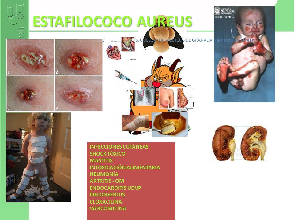 ESTAFILOCOCO AUREUS INFECCIONES CUTÁNEAS SHOCK TÓXICO MASTITIS