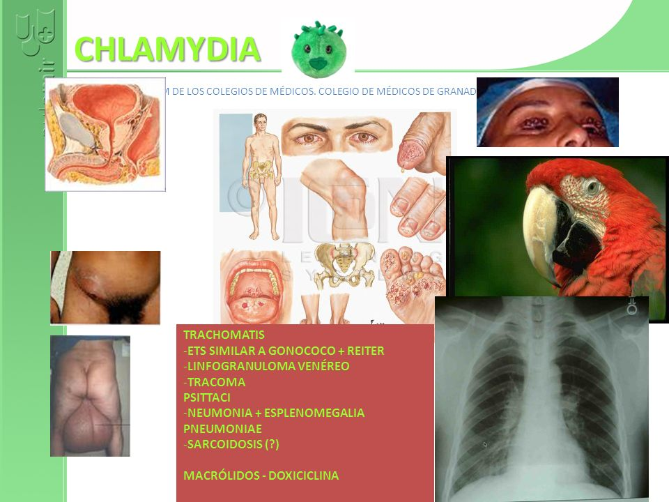 CHLAMYDIA TRACHOMATIS ETS SIMILAR A GONOCOCO + REITER