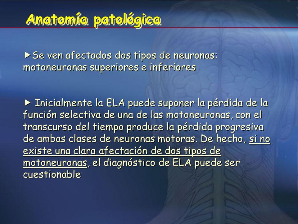 Anatomía patológica Se ven afectados dos tipos de neuronas: motoneuronas superiores e inferiores.