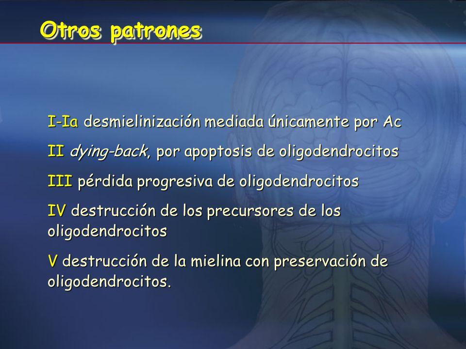 Otros patrones I-Ia desmielinización mediada únicamente por Ac