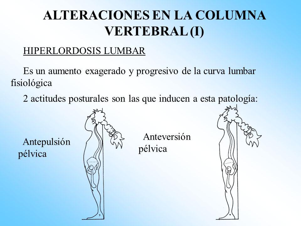 ALTERACIONES EN LA COLUMNA VERTEBRAL (I)