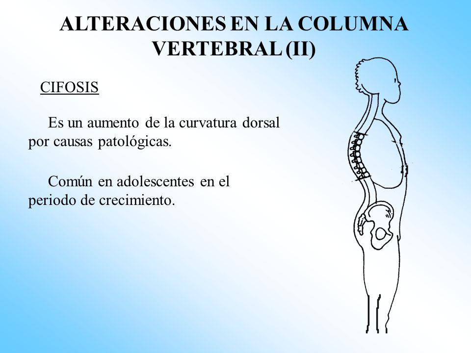 ALTERACIONES EN LA COLUMNA VERTEBRAL (II)