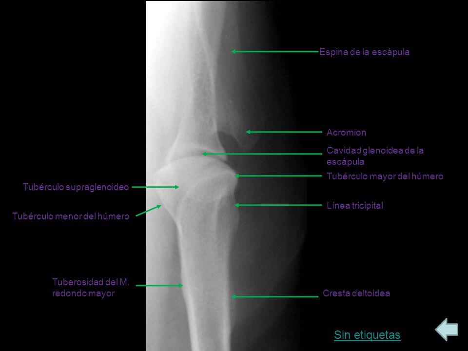 Sin etiquetas Espina de la escápula Acromion
