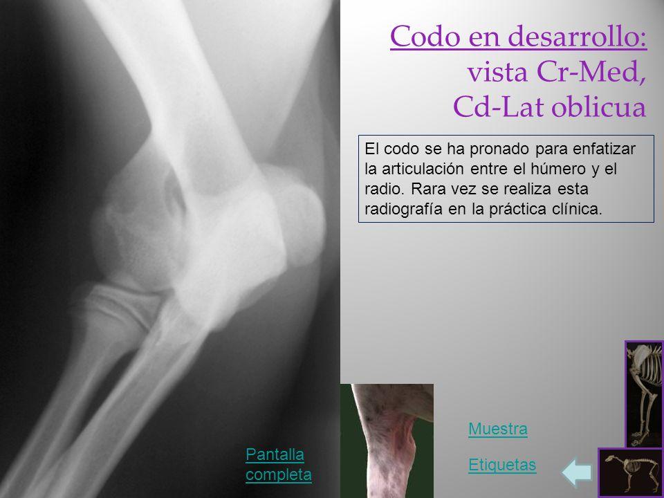 Codo en desarrollo: vista Cr-Med, Cd-Lat oblicua