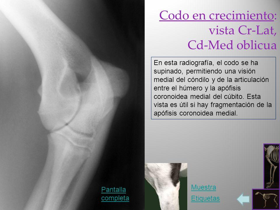 Codo en crecimiento: vista Cr-Lat, Cd-Med oblicua