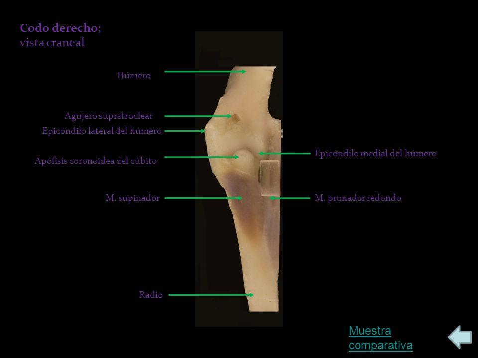 Codo derecho; vista craneal Muestra comparativa Húmero