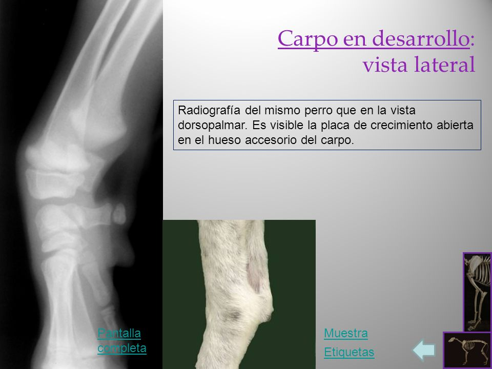 Carpo en desarrollo: vista lateral