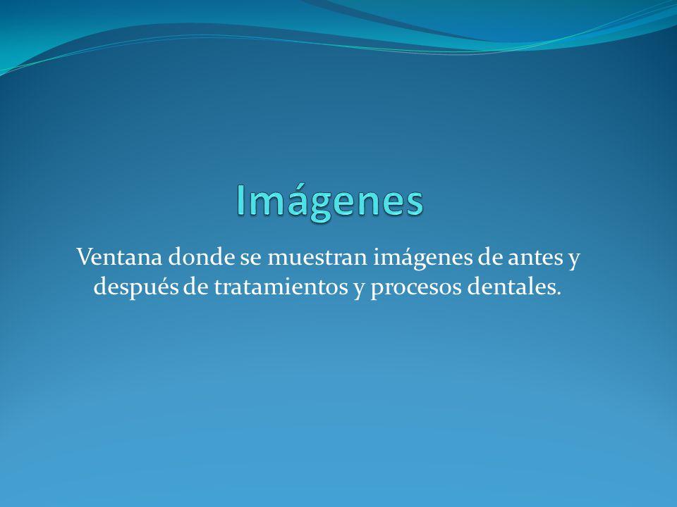 Imágenes Ventana donde se muestran imágenes de antes y después de tratamientos y procesos dentales.