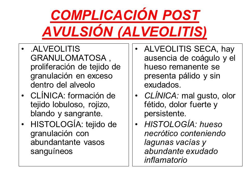 COMPLICACIÓN POST AVULSIÓN (ALVEOLITIS)