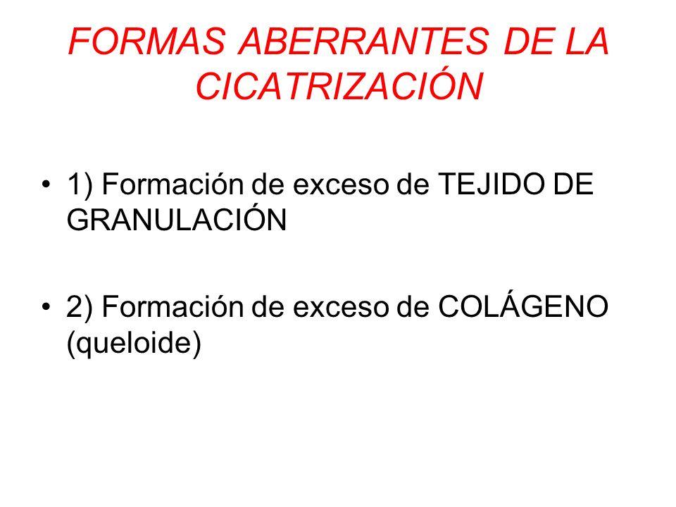 FORMAS ABERRANTES DE LA CICATRIZACIÓN
