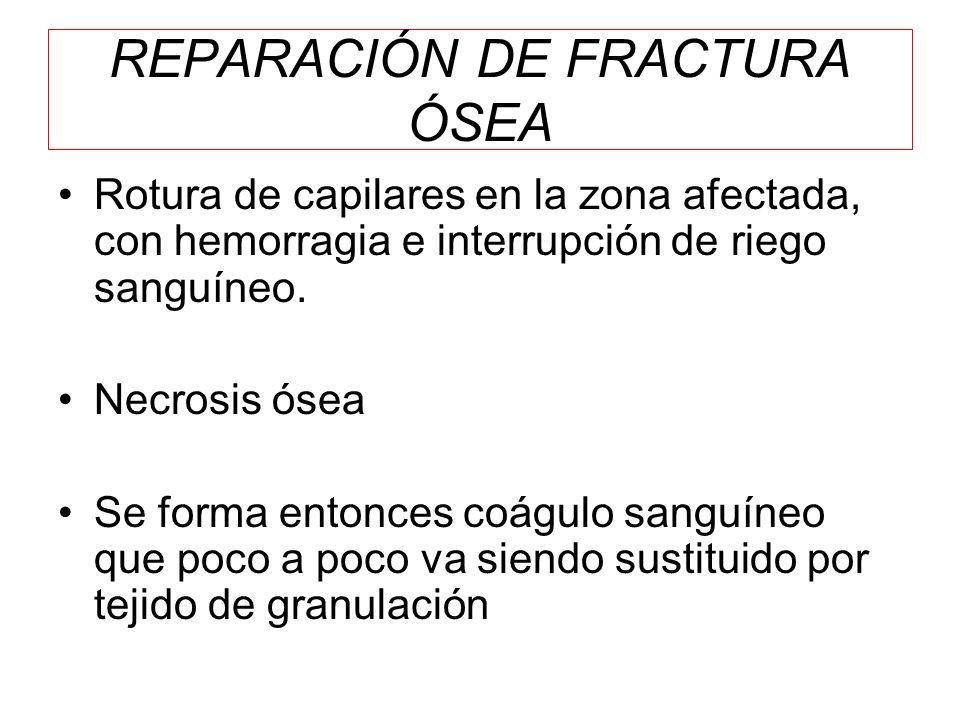 REPARACIÓN DE FRACTURA ÓSEA