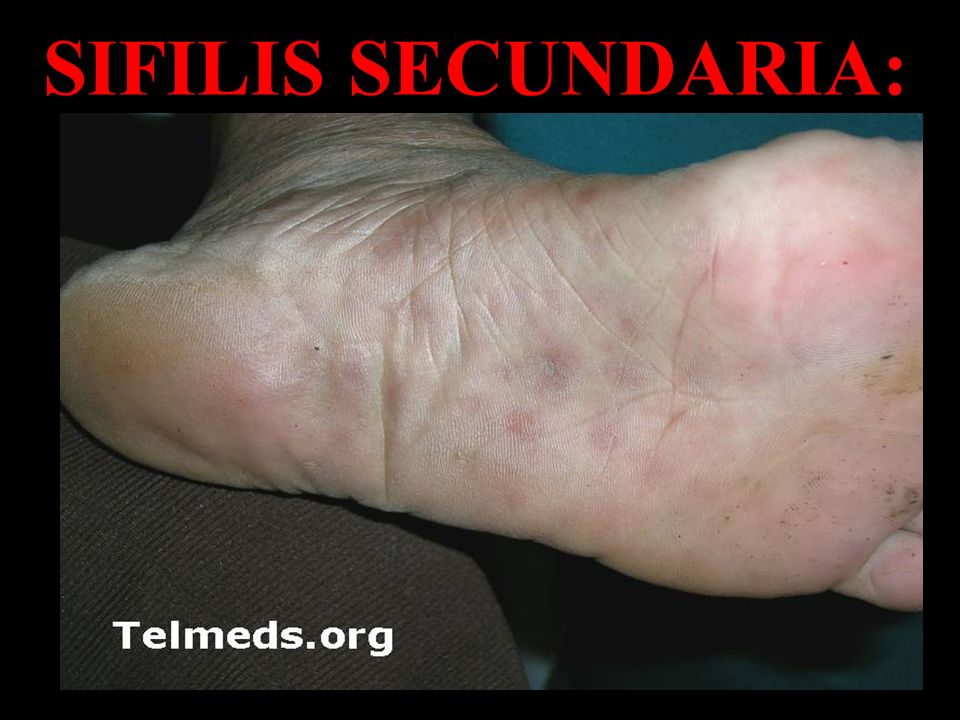 SIFILIS SECUNDARIA:
