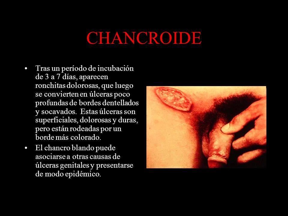 CHANCROIDE