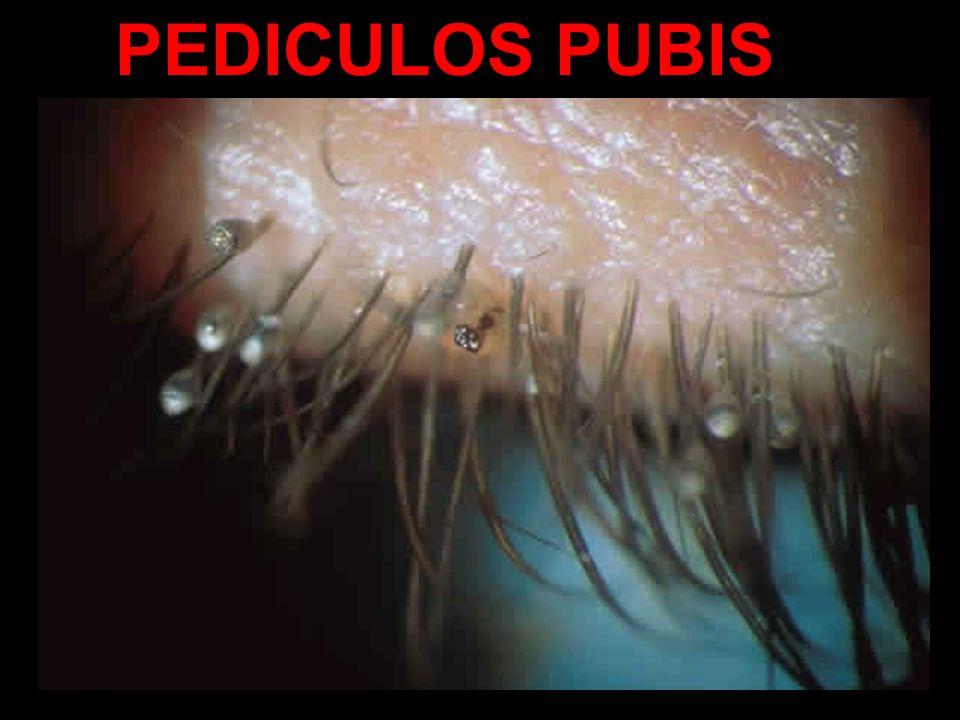 PEDICULOS PUBIS