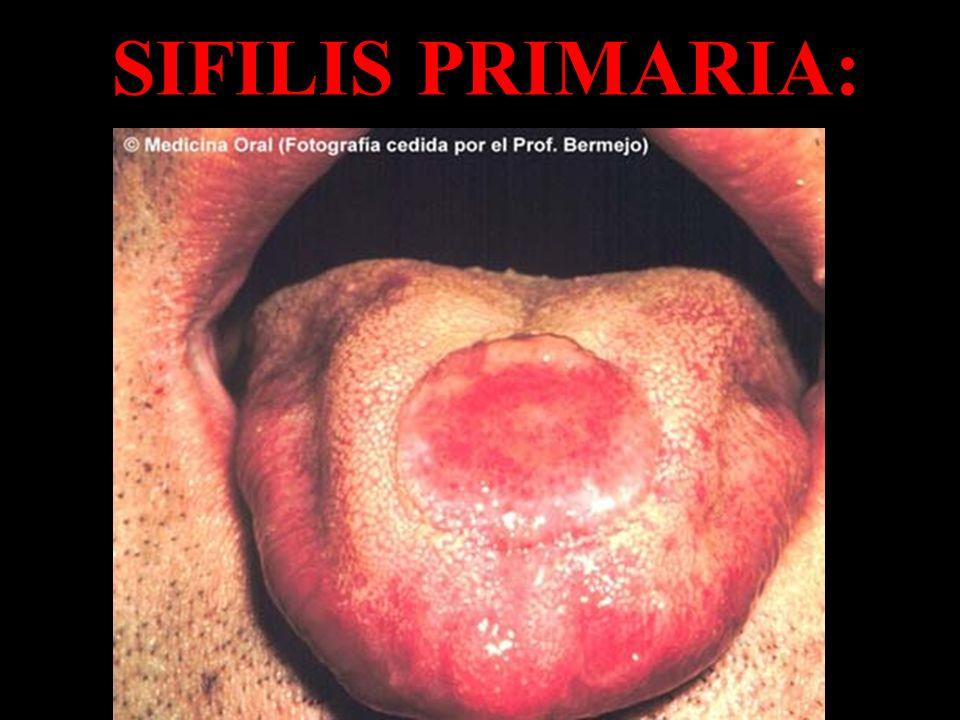 SIFILIS PRIMARIA:
