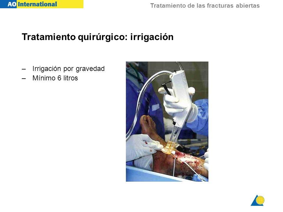 Tratamiento quirúrgico: irrigación
