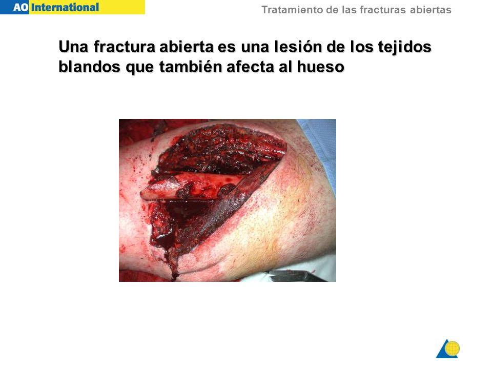 Una fractura abierta es una lesión de los tejidos blandos que también afecta al hueso