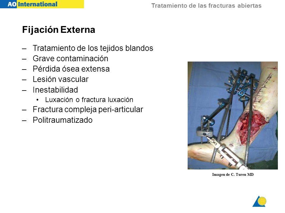 Fijación Externa Tratamiento de los tejidos blandos