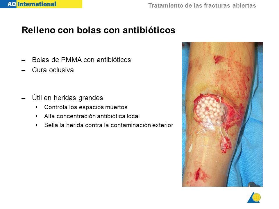 Relleno con bolas con antibióticos