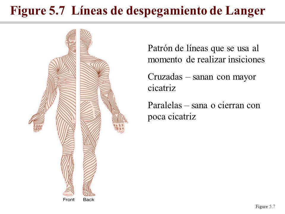 Figure 5.7 Líneas de despegamiento de Langer