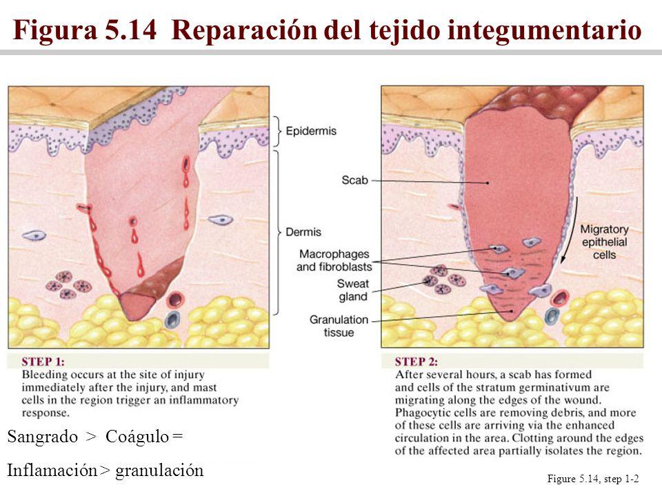 Figura 5.14 Reparación del tejido integumentario