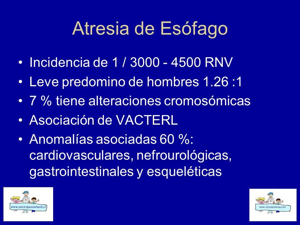 Atresia de Esófago Incidencia de 1 / 3000 - 4500 RNV