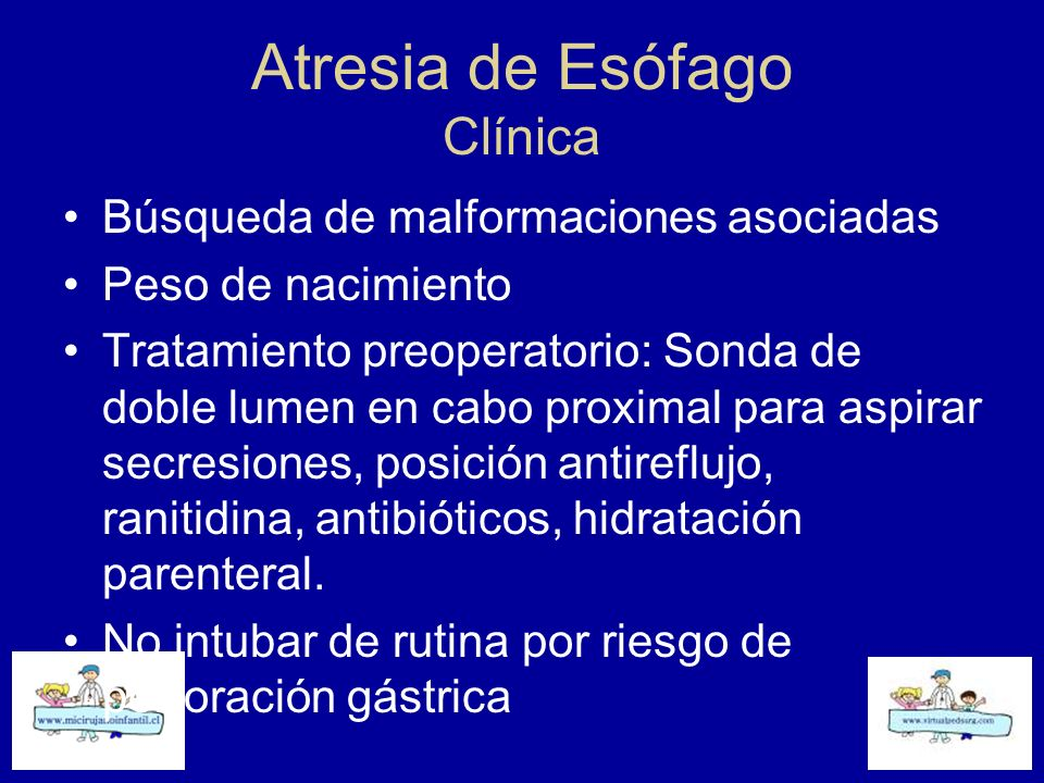 Atresia de Esófago Clínica