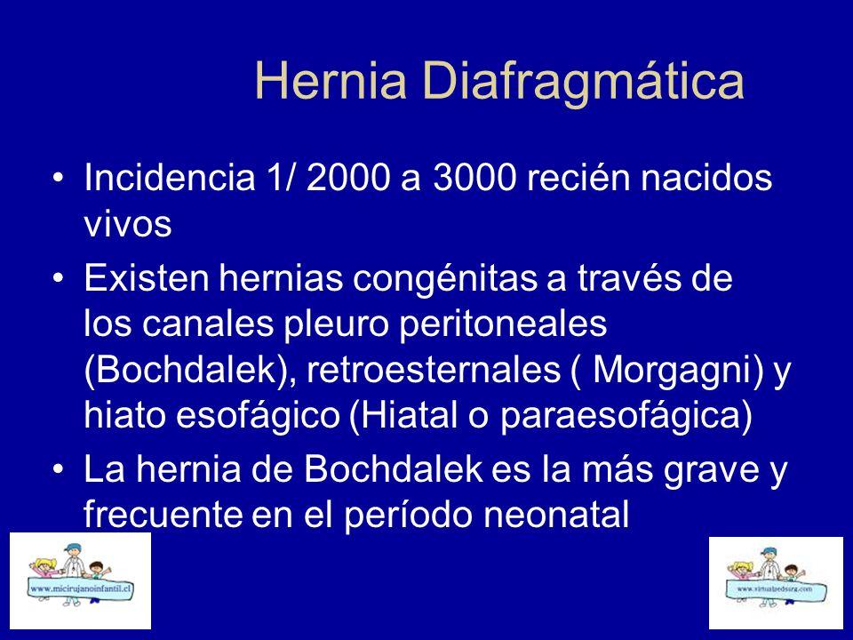 Hernia Diafragmática Incidencia 1/ 2000 a 3000 recién nacidos vivos