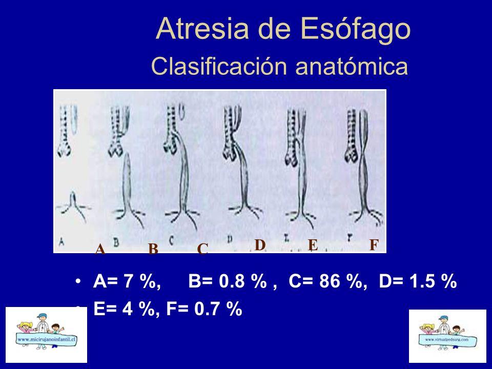 Atresia de Esófago Clasificación anatómica