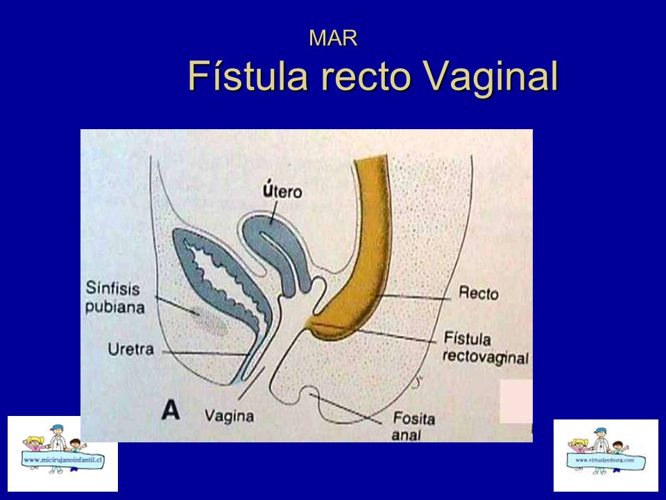 MAR Fístula recto Vaginal