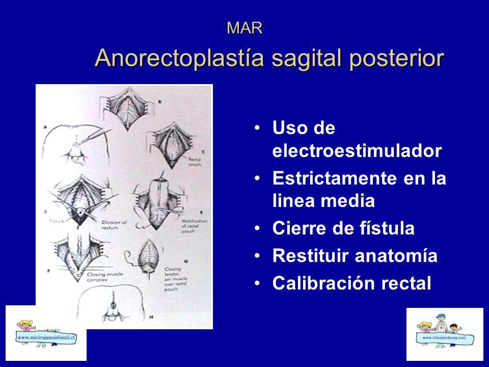 MAR Anorectoplastía sagital posterior