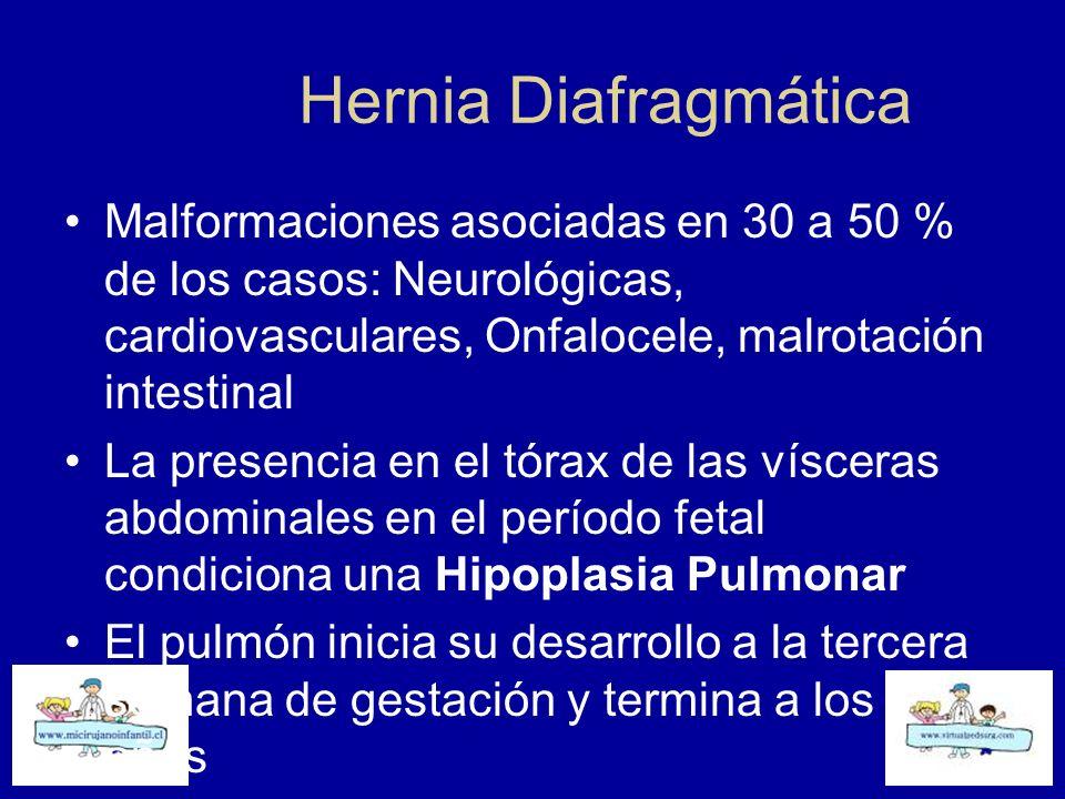 Hernia Diafragmática Malformaciones asociadas en 30 a 50 % de los casos: Neurológicas, cardiovasculares, Onfalocele, malrotación intestinal.