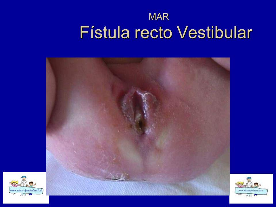 MAR Fístula recto Vestibular