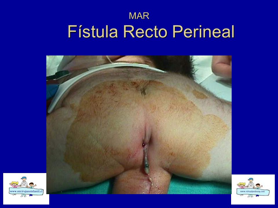 MAR Fístula Recto Perineal