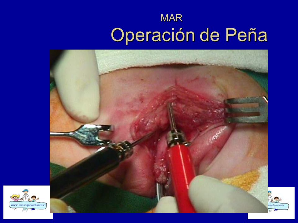 MAR Operación de Peña