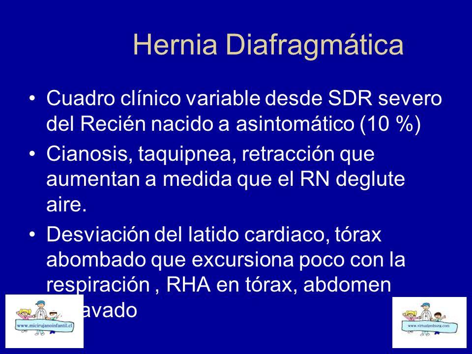 Hernia Diafragmática Cuadro clínico variable desde SDR severo del Recién nacido a asintomático (10 %)